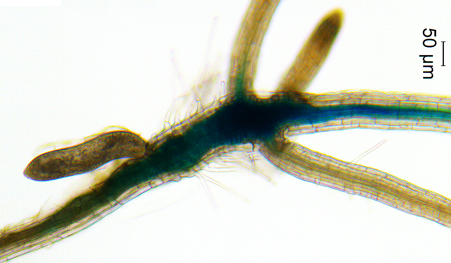 A nematode (the oblong object on the upper left) activates the vascular stem cell pathway in the developing nematode feeding site (syncytium) on a plant root. | contributed by Melissa Mitchum